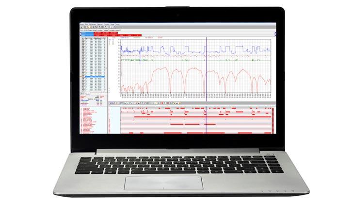 Analýza dat ze záznamu tachografu